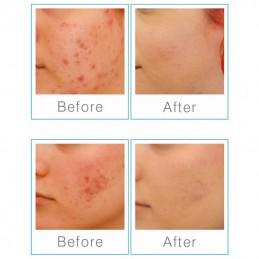 Q-ACNE zaawansowany zestaw do leczenia skóry trądzikowej, niebieskie światło. Produkt medyczny